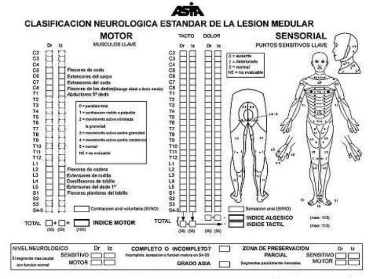Osteoporosis infantil sintomas iniciales